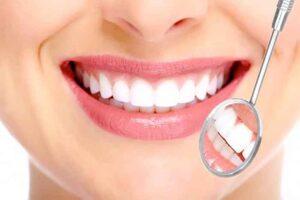 Strahlend weisse Zähne dank kosmetischer Zahnverschönerung